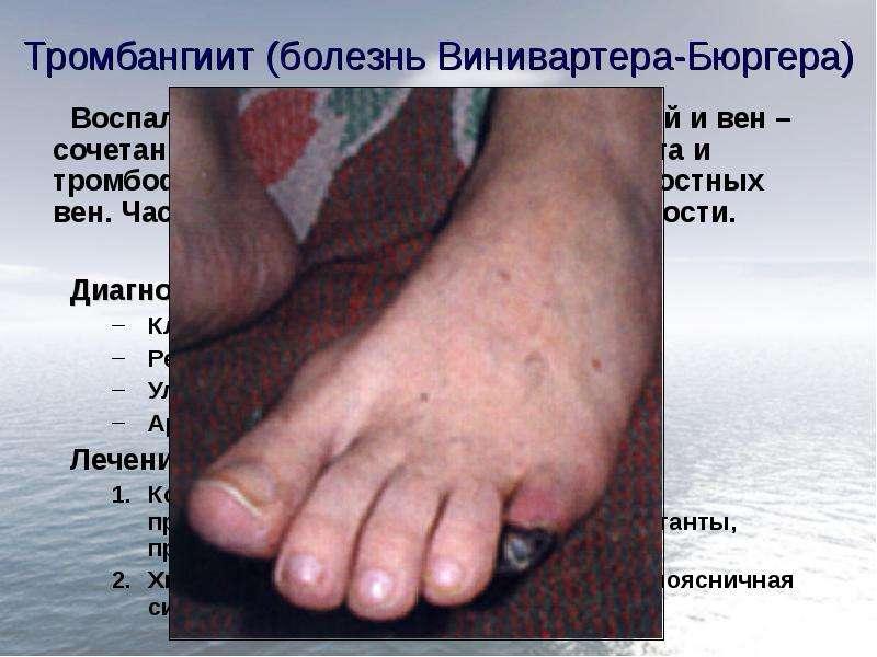 Тромбангиит (болезнь Винивартера-Бюргера) Воспалительный процесс стенок артерий и вен – сочетание об