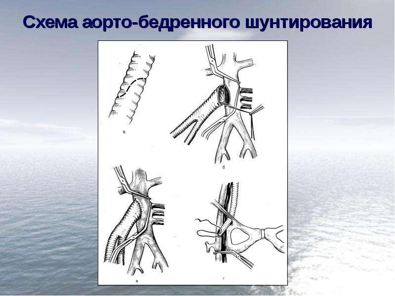 Схема аорто-бедренного шунтирования