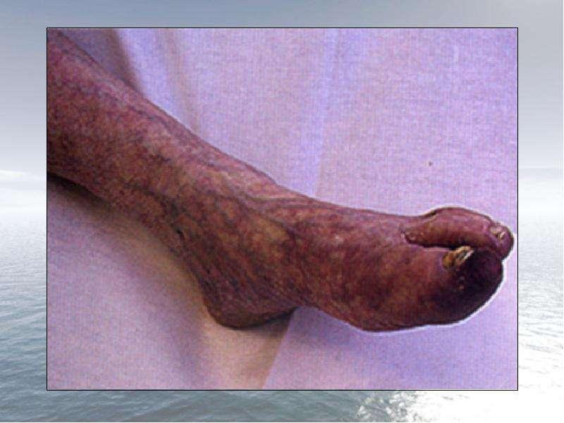 Заболевания периферических артерий (артериальная недостаточность), слайд 7