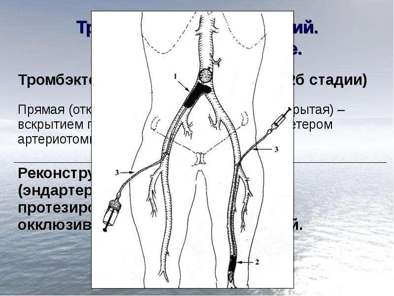 Тромбоз. Эмболия артерий. Хирургическое лечение.