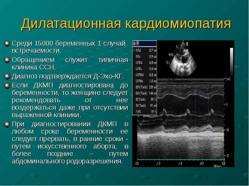 Среди 15000 беременных 1 случай встречаемости. Обращением служит типичная клиника ССН. Диагноз подтв