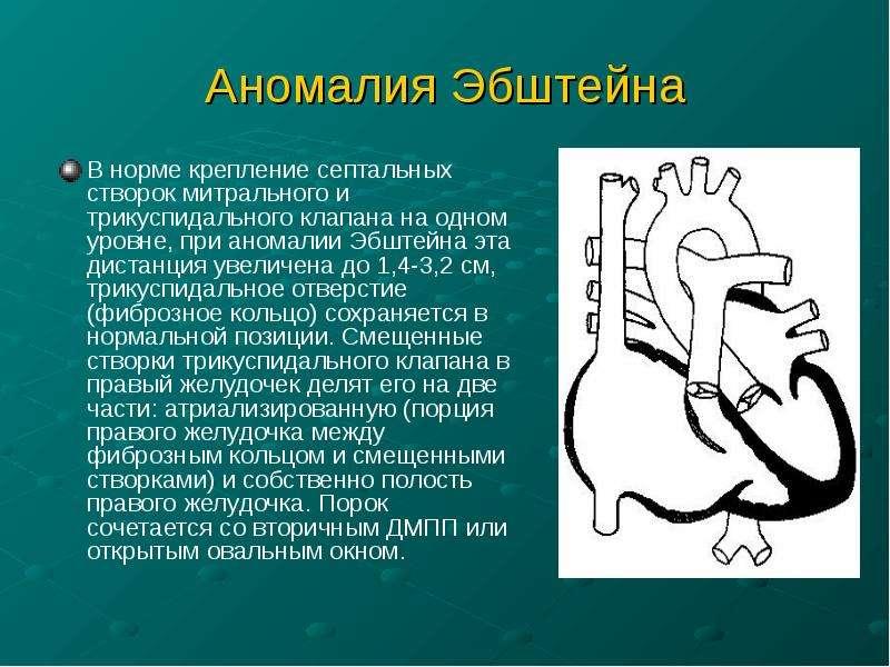 Аномалия Эбштейна В норме крепление септальных створок митрального и трикуспидального клапана на одн