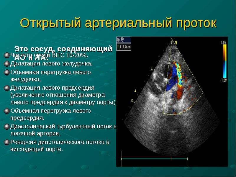 Открытый артериальный проток Это сосуд, соединяющий АО и ЛА.