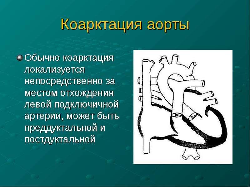 Коарктация аорты Обычно коарктация локализуется непосредственно за местом отхождения левой подключич