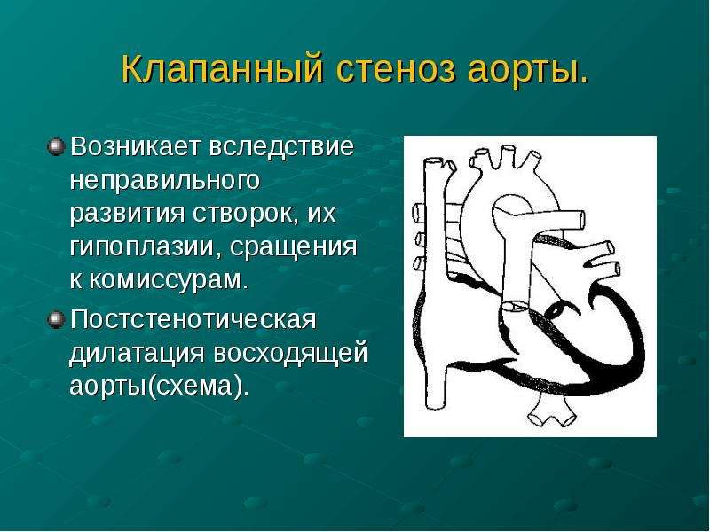 Клапанный стеноз аорты. Возникает вследствие неправильного развития створок, их гипоплазии, сращения