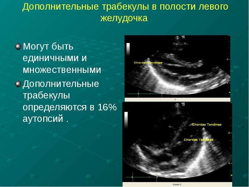 Дополнительные трабекулы в полости левого желудочка Могут быть единичными и множественными Дополните
