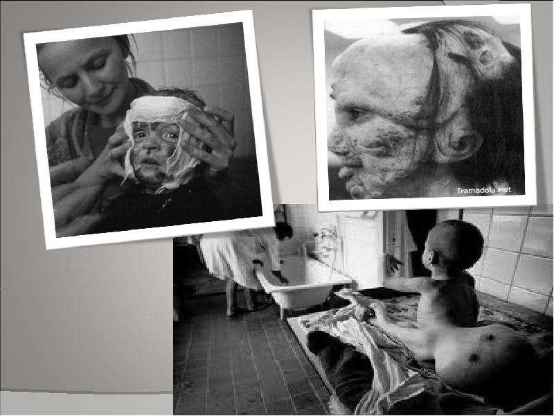 картинки облученных радиацией