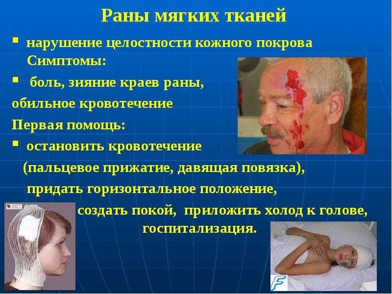 Раны мягких тканей нарушение целостности кожного покрова Симптомы: боль, зияние краев раны, обильное