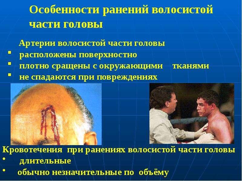 Особенности ранений волосистой части головы