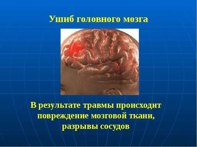 Ушиб головного мозга