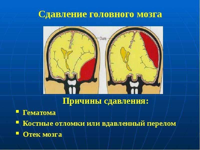Сдавление головного мозга Причины сдавления: Гематома Костные отломки или вдавленный перелом Отек мо