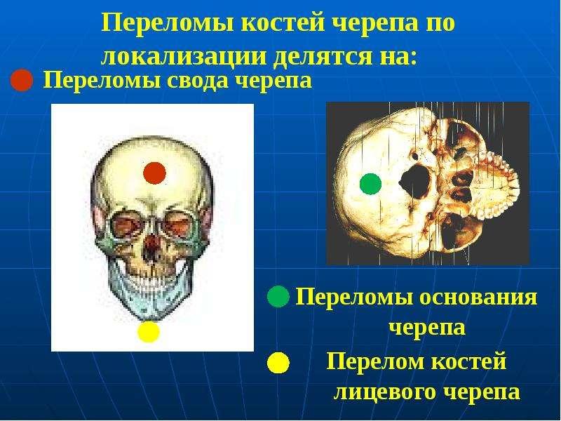 Переломы костей черепа по локализации делятся на: Переломы свода черепа