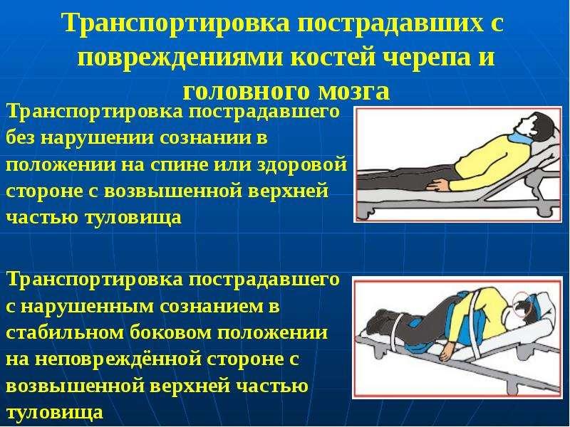 Транспортировка пострадавших с повреждениями костей черепа и головного мозга Транспортировка пострад