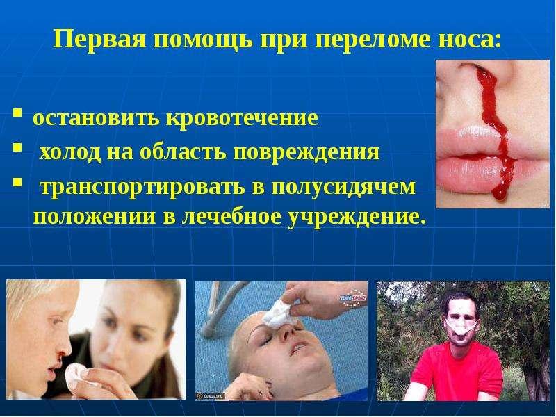 Первая помощь при переломе носа: остановить кровотечение холод на область повреждения транспортирова