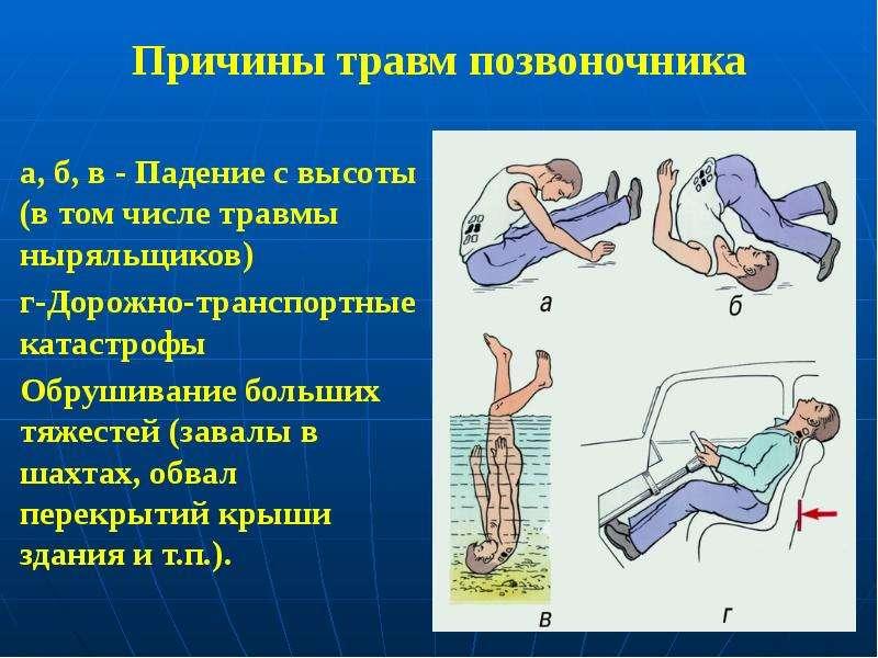 Причины травм позвоночника а, б, в - Падение с высоты (в том числе травмы ныряльщиков) г-Дорожно-тра
