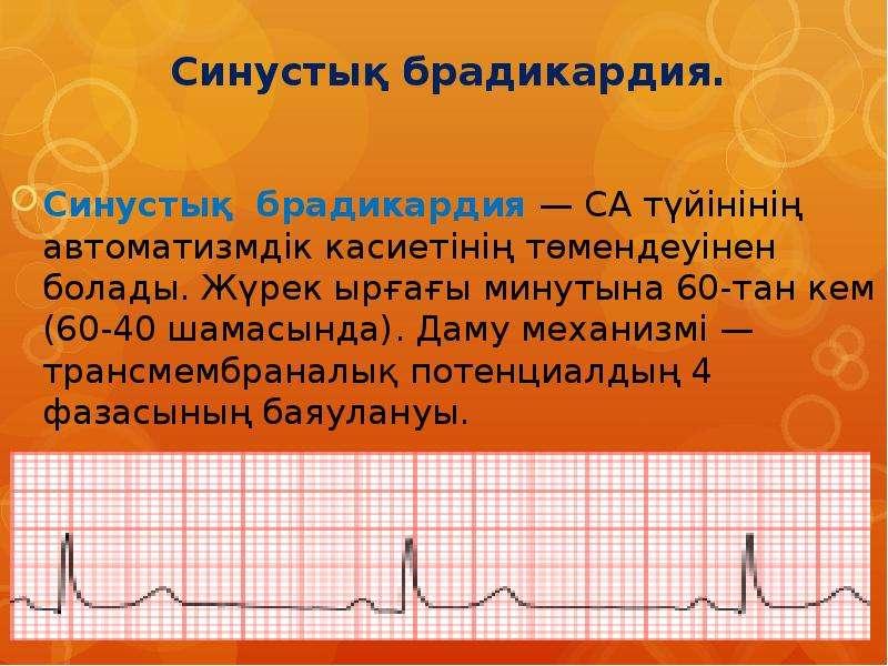 Синусовая брадикардия сердца: симптомы, причины, лечение