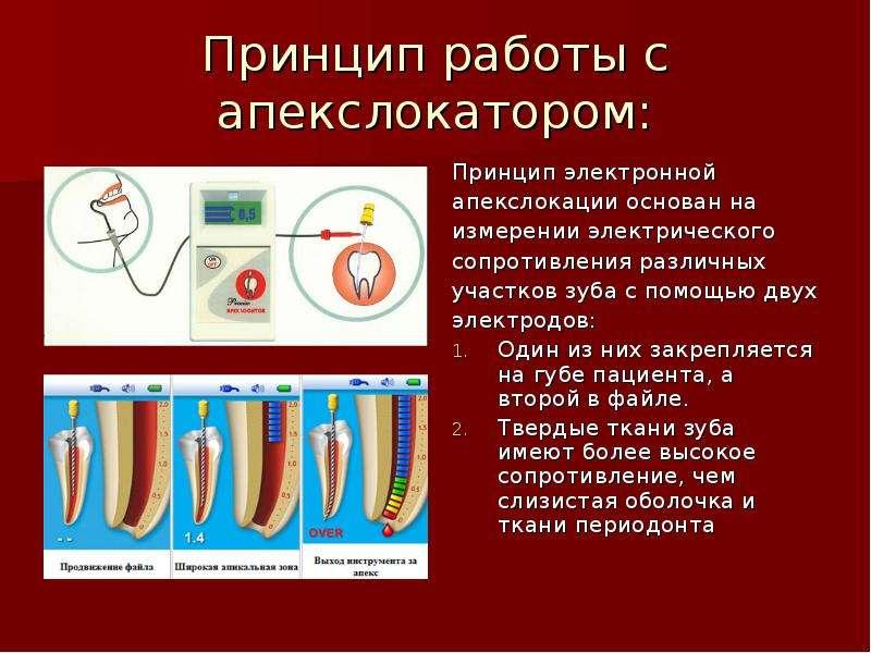 Принцип работы с апекслокатором: Принцип электронной апекслокации основан на измерении электрическог