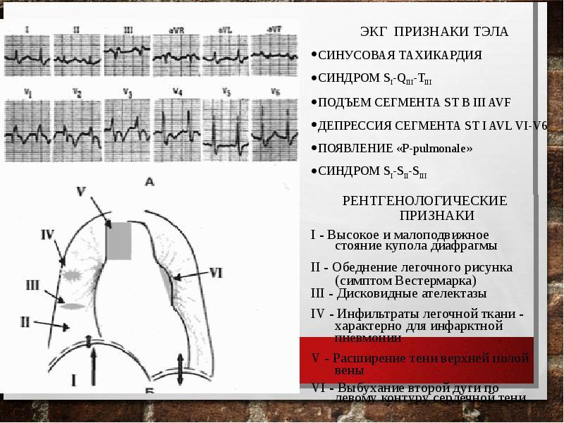 Тромбоэмболия ветвей легочной артерии: патофизиология, клиника, диагностика, лечение, слайд 14