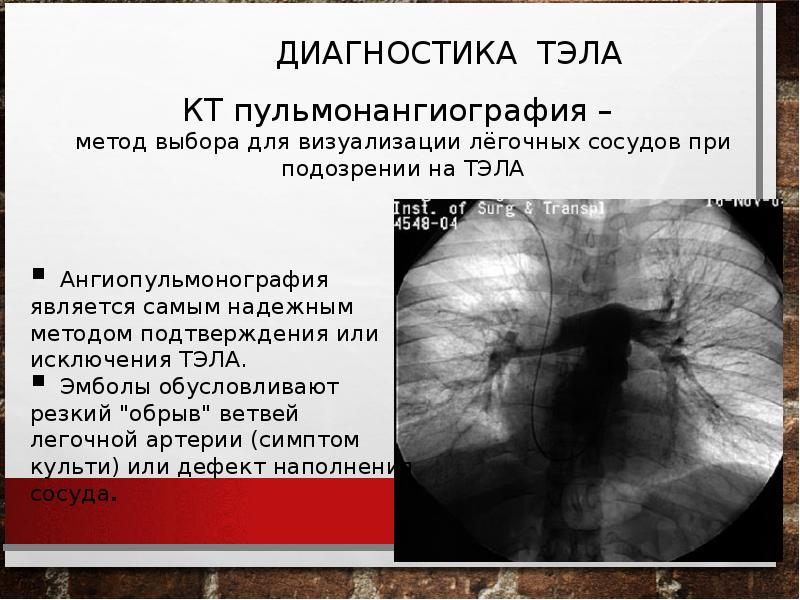 Тромбоэмболия ветвей легочной артерии: патофизиология, клиника, диагностика, лечение, слайд 20