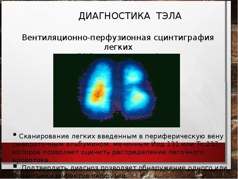 Тромбоэмболия ветвей легочной артерии: патофизиология, клиника, диагностика, лечение, слайд 21