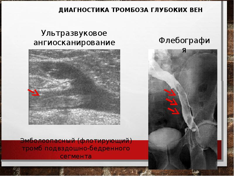 Тромбоэмболия ветвей легочной артерии: патофизиология, клиника, диагностика, лечение, слайд 23
