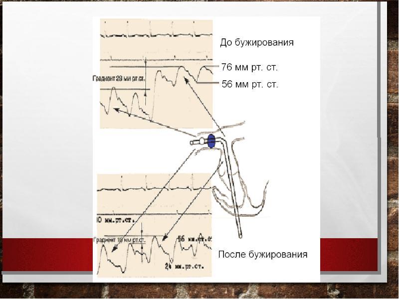 Тромбоэмболия ветвей легочной артерии: патофизиология, клиника, диагностика, лечение, слайд 35