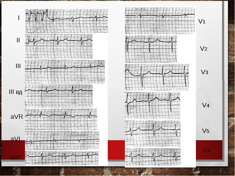 Тромбоэмболия ветвей легочной артерии: патофизиология, клиника, диагностика, лечение, слайд 42
