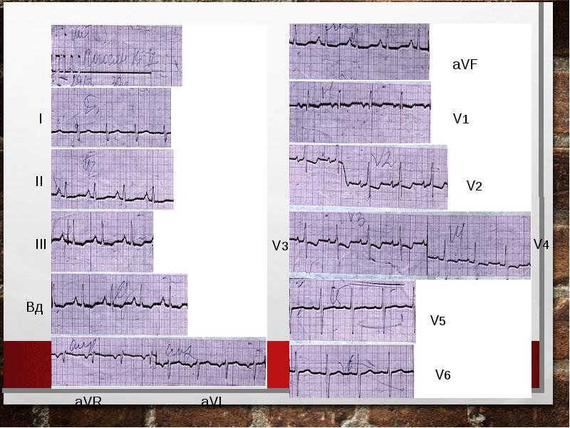 Тромбоэмболия ветвей легочной артерии: патофизиология, клиника, диагностика, лечение, слайд 43