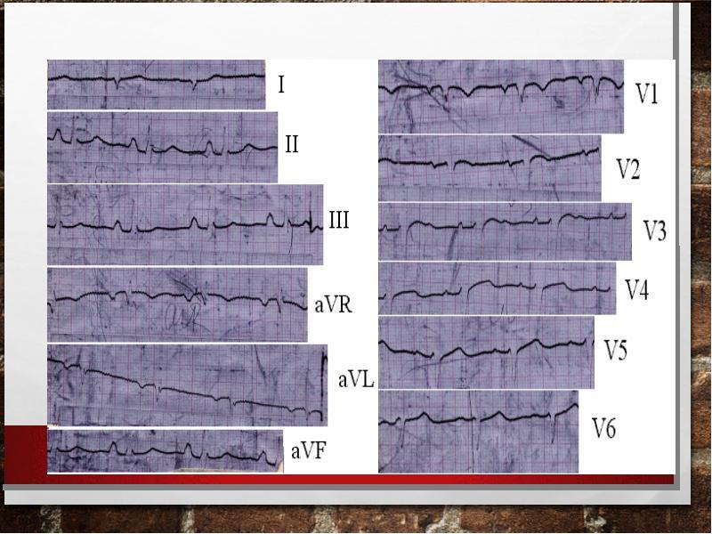 Тромбоэмболия ветвей легочной артерии: патофизиология, клиника, диагностика, лечение, слайд 44