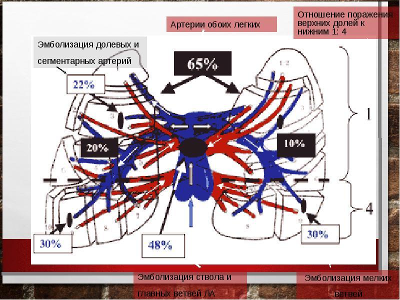 Тромбоэмболия ветвей легочной артерии: патофизиология, клиника, диагностика, лечение, слайд 9