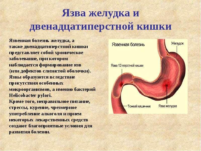 Диета При Лечении Язвы 12 Перстной Кишки