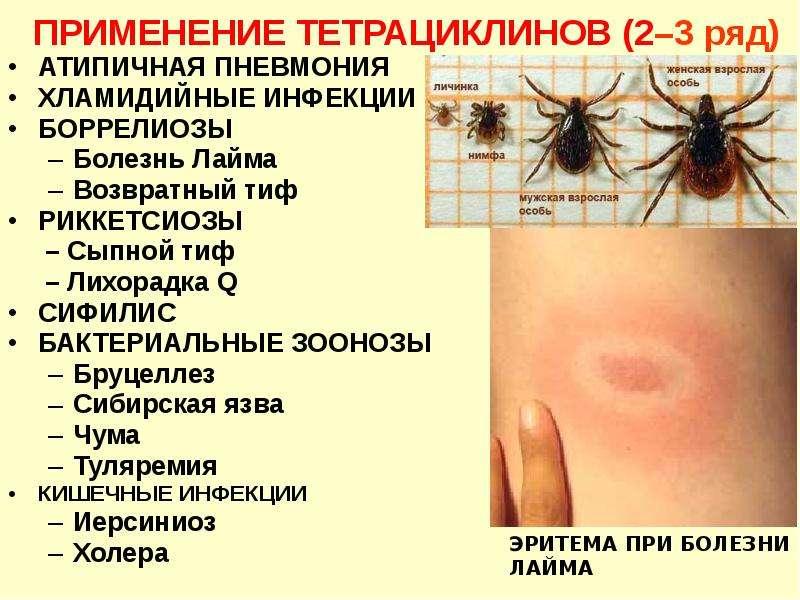 АТИПИЧНАЯ ПНЕВМОНИЯ АТИПИЧНАЯ ПНЕВМОНИЯ ХЛАМИДИЙНЫЕ ИНФЕКЦИИ БОРРЕЛИОЗЫ Болезнь Лайма Возвратный тиф