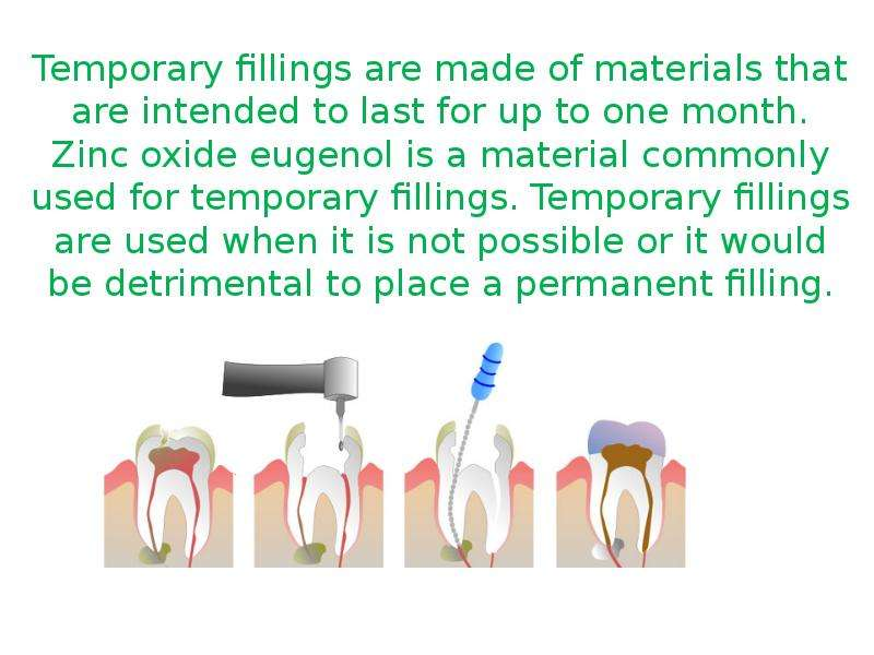 Temporary fillings are made of materials that are intended to last for up to one month. Zinc oxide e