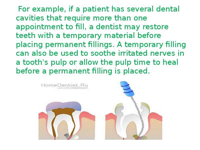 For example, if a patient has several dental cavities that require more than one appointment to fill