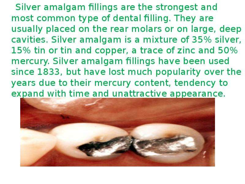 Silver amalgam fillings are the strongest and most common type of dental filling. They are usually p