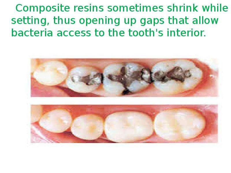 Composite resins sometimes shrink while setting, thus opening up gaps that allow bacteria access to