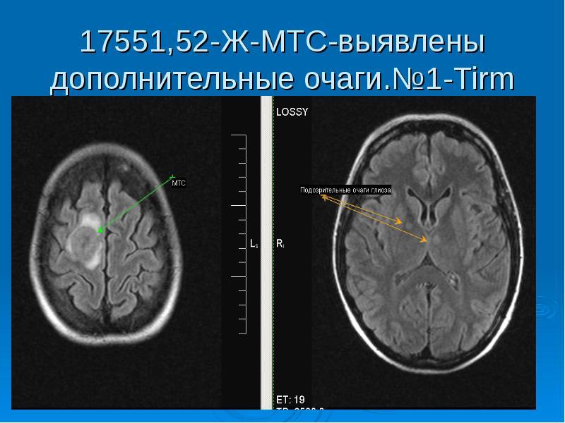 17551,52-Ж-МТС-выявлены дополнительные очаги. №1-Tirm