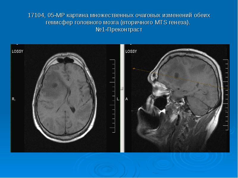 17104, 05-МР картина множественных очаговых изменений обеих гемисфер головного мозга (вторичного МТS