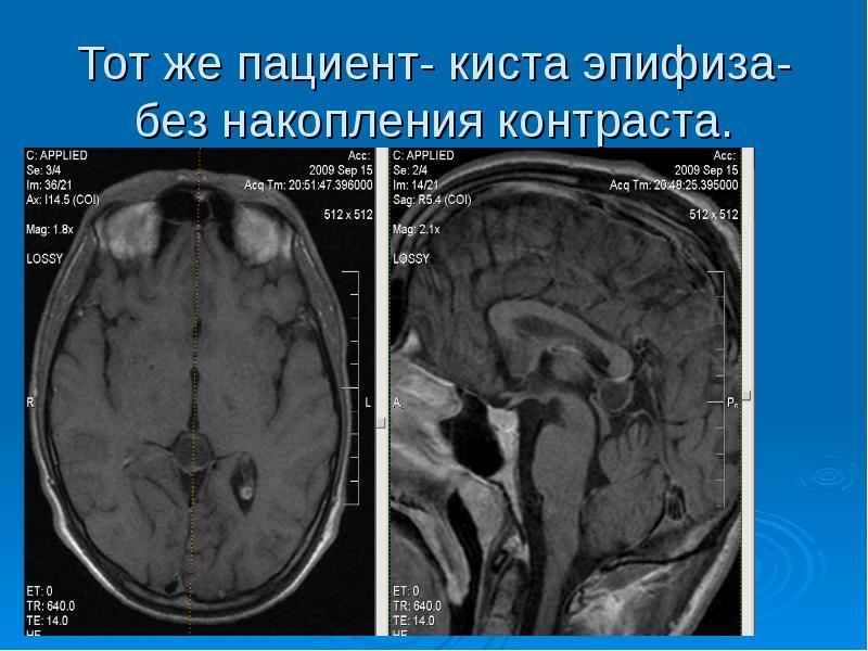 Тот же пациент- киста эпифиза-без накопления контраста.