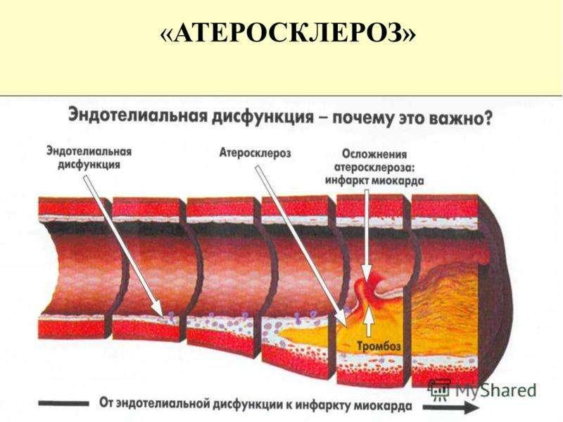 . Коронаролитические, гипохолестеринемические, слайд 14