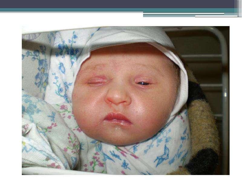 Заболевания новорожденных, связанные с актом родов. Родовые травмы, рис. 29