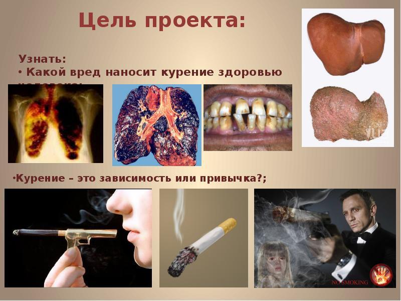 Стоматологическая имплантация реферат с картинками