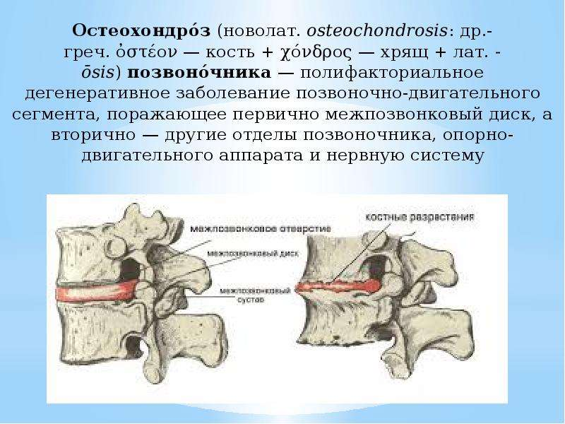 Остеохондро́з (новолат. osteochondrosis: др. -греч. ὀστέον — кость + χόνδρος — хрящ + лат. -ōsis) по