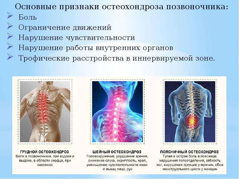 Основные признаки остеохондроза позвоночника: Основные признаки остеохондроза позвоночника: Боль Огр