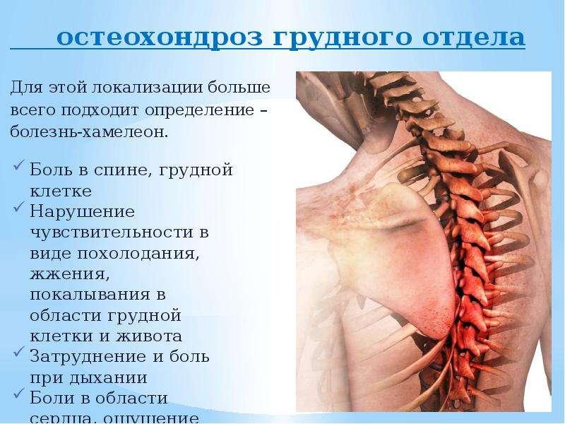остеохондроз грудного отдела остеохондроз грудного отдела Для этой локализации больше всего подходит