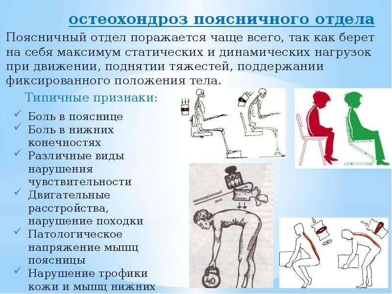остеохондроз поясничного отдела остеохондроз поясничного отдела Поясничный отдел поражается чаще все