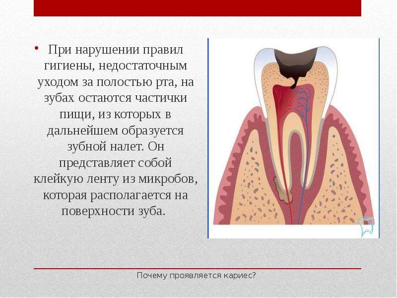 Почему проявляется кариес? При нарушении правил гигиены, недостаточным уходом за полостью рта, на зу