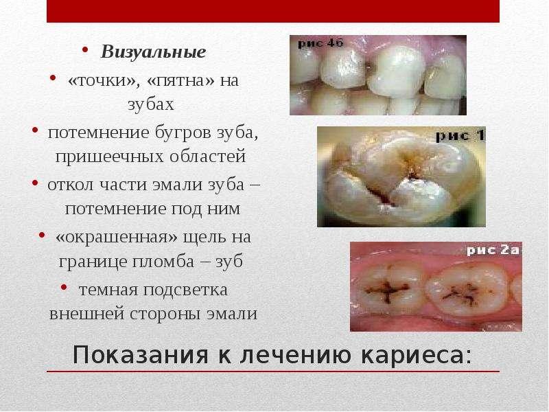 Показания к лечению кариеса: Визуальные «точки», «пятна» на зубах потемнение бугров зуба, пришеечных