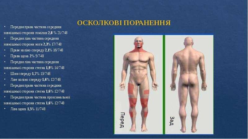 ОСКОЛКОВІ ПОРАНЕННЯ Передня права частина середини зовнішньої сторони гомілки 2,8 % 21/748 Передня л