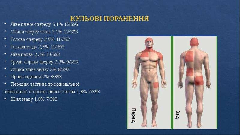 КУЛЬОВІ ПОРАНЕННЯ Ліве плече спереду 3,1% 12/393 Спина зверху зліва 3,1% 12/393 Голова спереду 2,8%